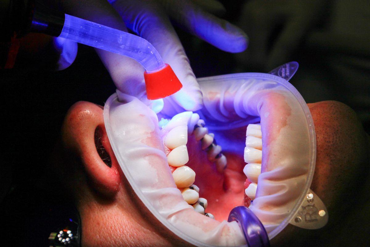 Zła droga żywienia się to większe braki w ustach oraz dodatkowo ich zgubę