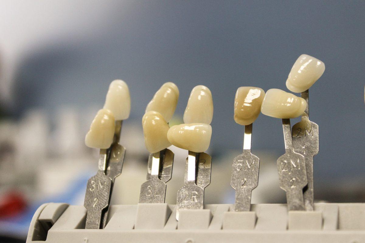 Ładne nienaganne zęby oraz godny podziwu prześliczny uśmieszek to powód do płenego uśmiechu.