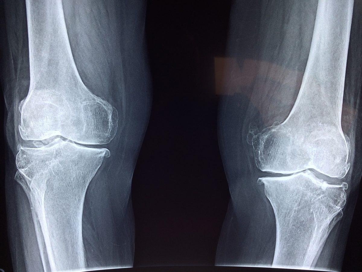Skuteczność artroskopii.